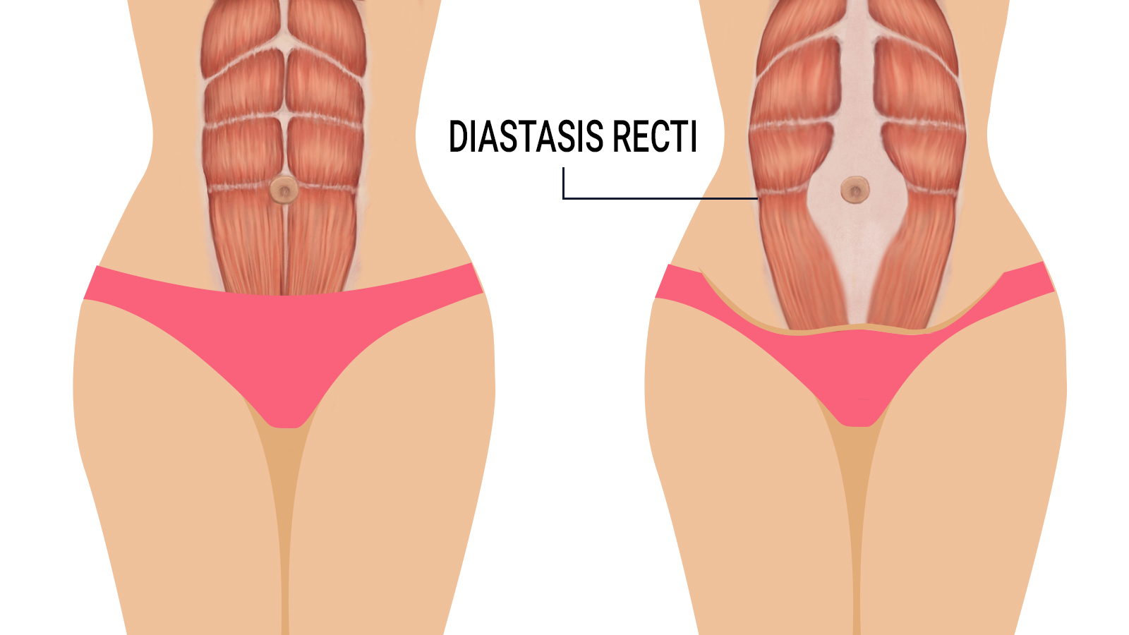 diastasis-recti-signs